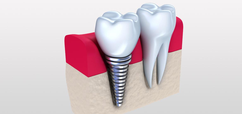 Einpflanzen der Implantate bei Zahnersatz und Implantologie