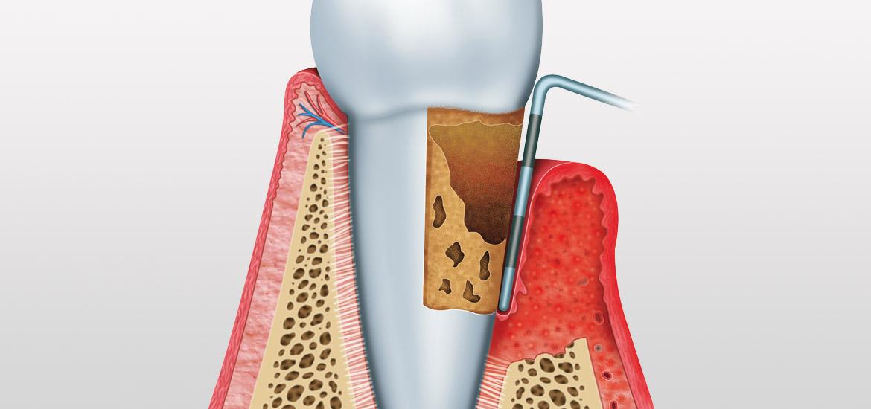 Behandlung von Paradontose beim Zahnarzt