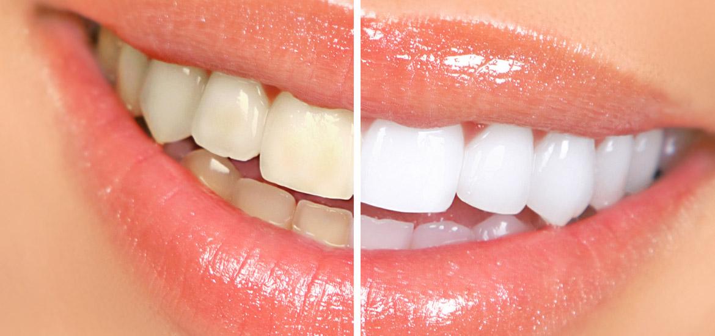 Zahnästhetik wie Bleaching für schöne Zähne