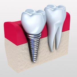 Implantologie beim Zahnarzt mit Zahnersatz / Implantate