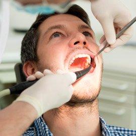 Wurzelbehandlung am Zahn bei Entzündung