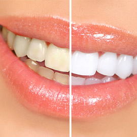 Zahnästhetik weisse Zähne