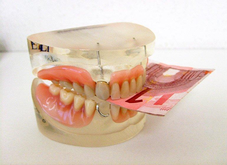 Kosten und Preise für Kronen, Zahnersatz, Veneers, Implantate …